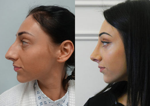 Nose Surgery before & after photos