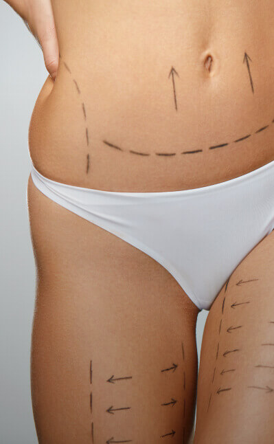Tummy Tuck Plastic Surgery