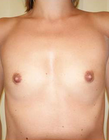 Breast Augmentation Before & After Patient #466
