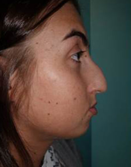 Rhinoplasty Before & After Patient #520