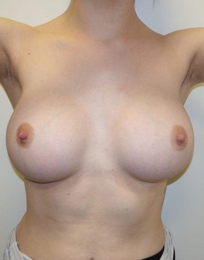 Breast Augmentation Before & After Patient #508