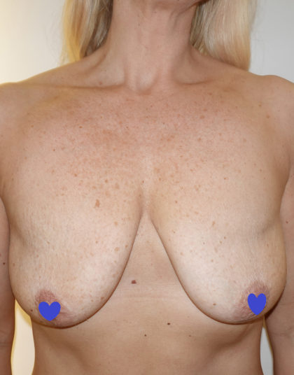 Breast Augmentation Before & After Patient #234