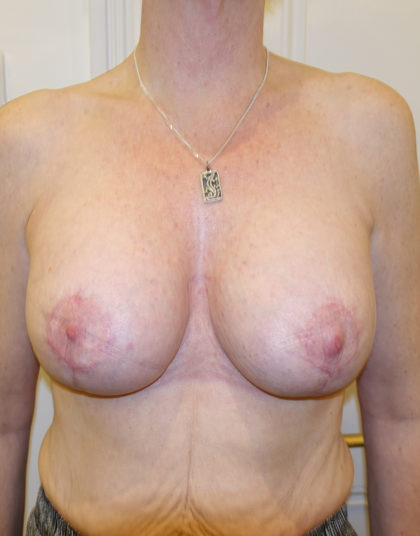 Breast Augmentation Before & After Patient #432