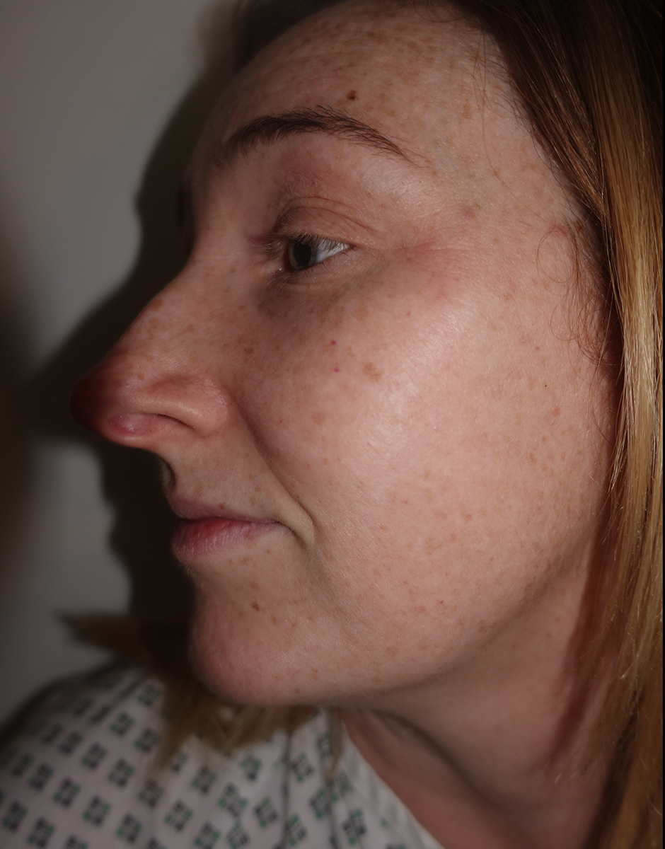 Open Or Closed Rhinoplasty Frati Cosmetic Surgery