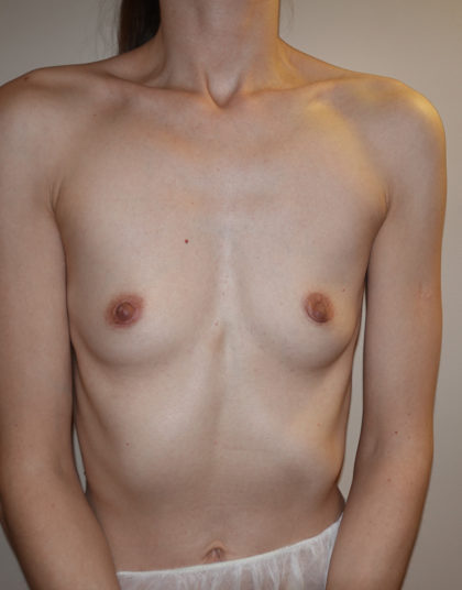 Breast Augmentation Before & After Patient #283