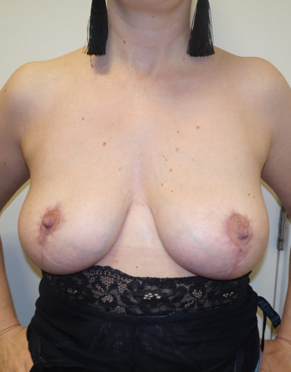 Breast Lift Before & After Patient #344
