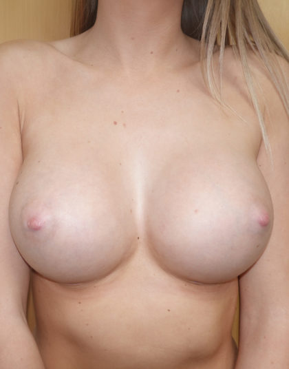 Breast Augmentation Before & After Patient #464