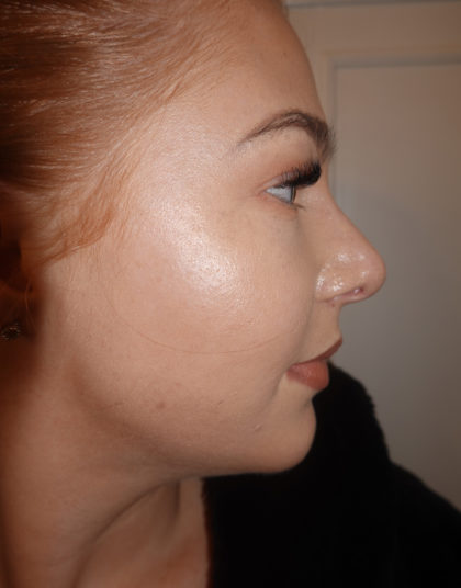 Rhinoplasty Before & After Patient #380