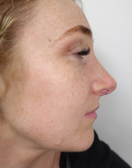 Rhinoplasty Before & After Patient #415
