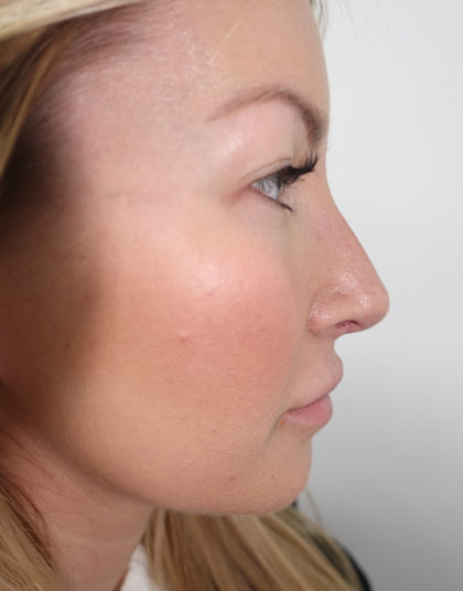 Rhinoplasty Before & After Patient #394