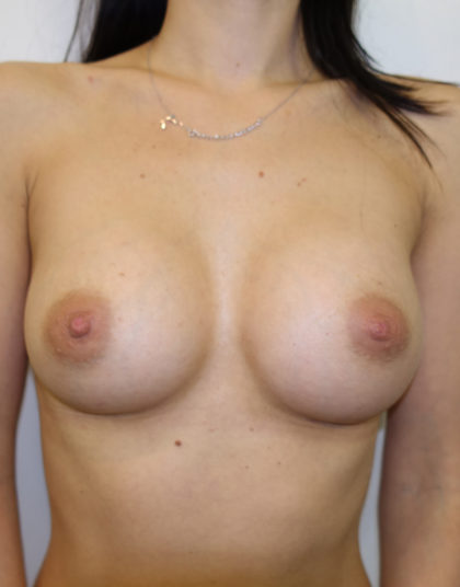 Breast Augmentation Before & After Patient #258