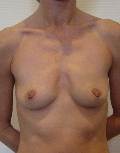 Breast Augmentation Before & After Patient #218