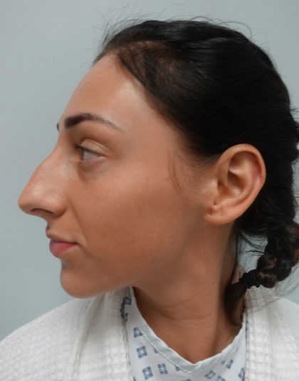 Rhinoplasty Before & After Patient #379