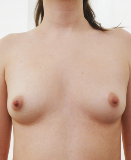 Breast Augmentation Before & After Patient #506